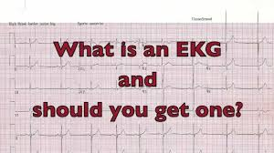 What is an EKG and Should you get one?